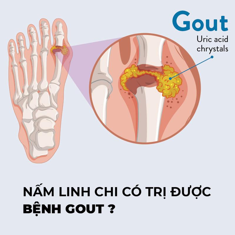 Nấm Linh Chi có trị được bệnh gout?
