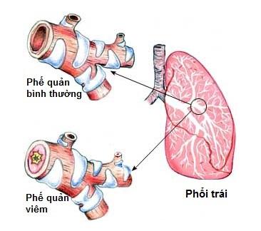 Lòng phế quản bị thu hẹp do niêm mạc sưng to  khiến hô hấp của người bệnh trở nên khó khăn, hay khò khè, khó thở
